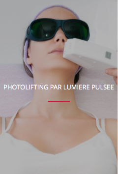 PHOTOLIFTING PAR LUMIERE PULSEE